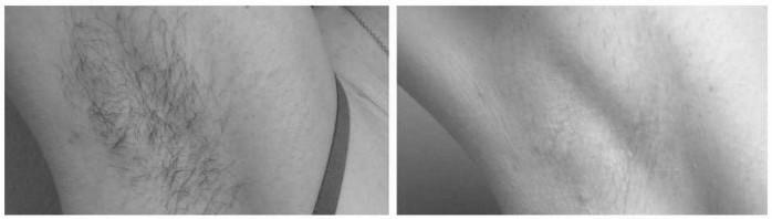 Фото рук. До и после