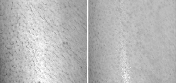 Зона ног. Фото до и после