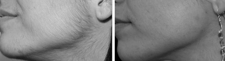 Фото до и после. Область лица. Бакенбарды