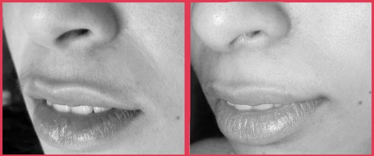 Эпиляция в области верхней губы