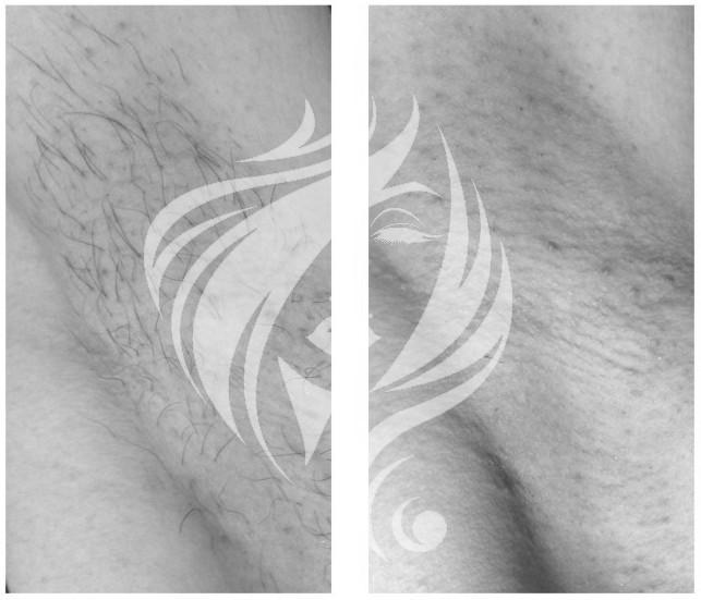 Удаление волос неодимовым лазером