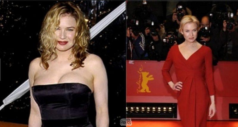 Рене Зельвегер до и после диеты