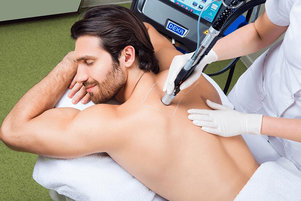 Процедура удаления волос лазером