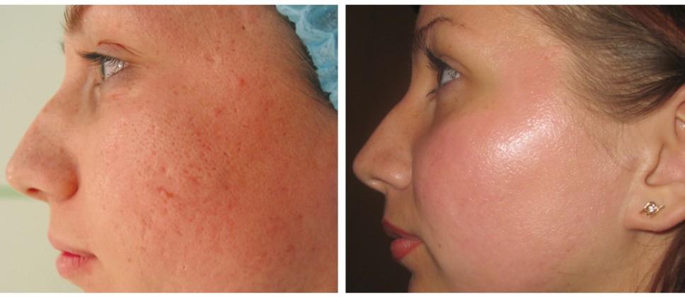 Снимок сделан до лечения и после