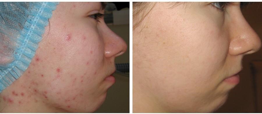 Фотография до и после процедуры