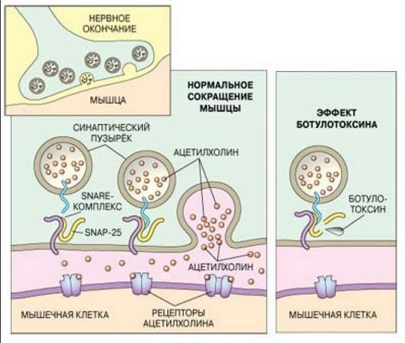 Как действует ботокс