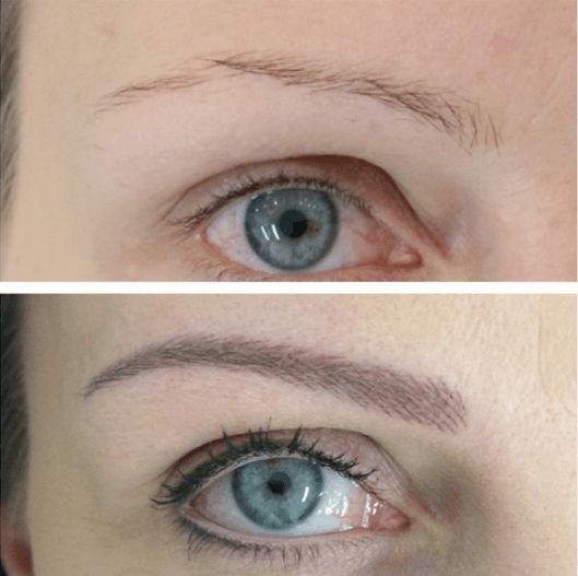 Фото до и после проведения процедуры