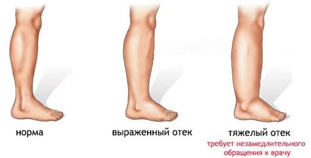 Отеки ног во время беремености