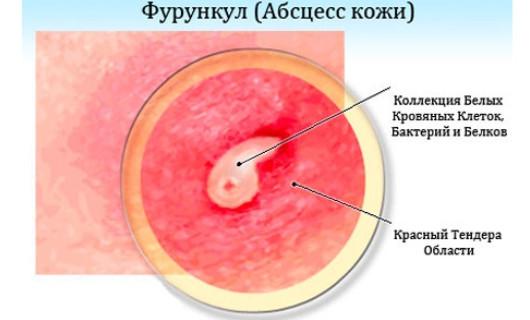 Фурункулез - причины и лечение
