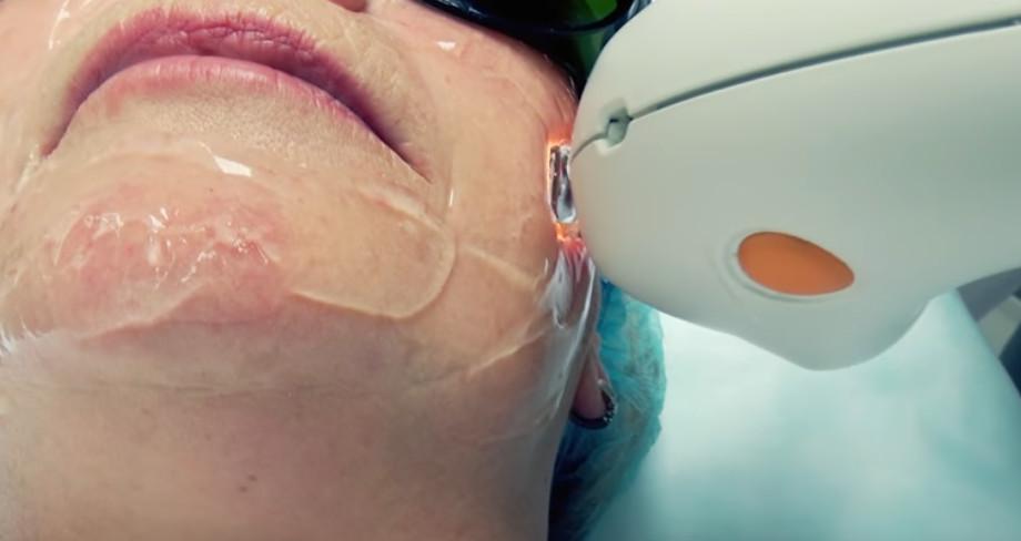 Удаление сосудов лазером на лице