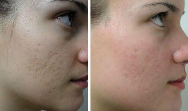 Фото до и после шлифовки