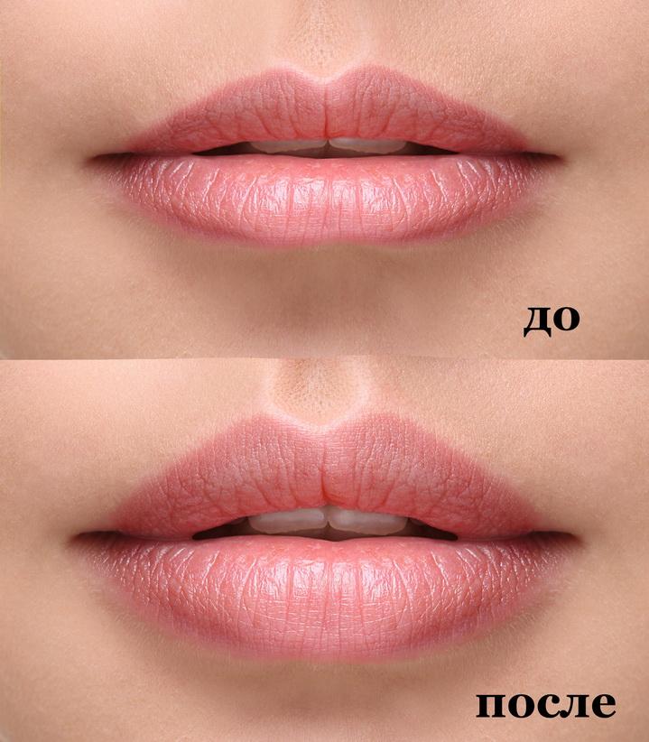 Фото до и после пластики губ