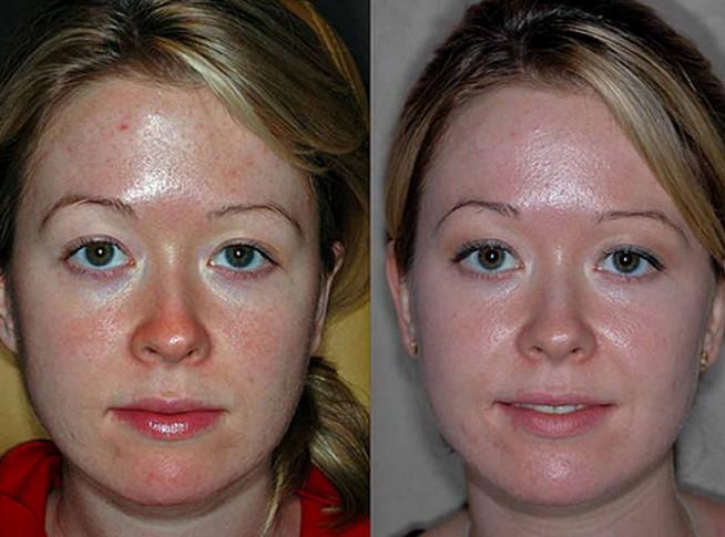 Фото до и после проведения пилинга