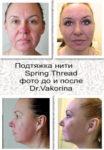 Фото до и после подтяжки Spring Thread