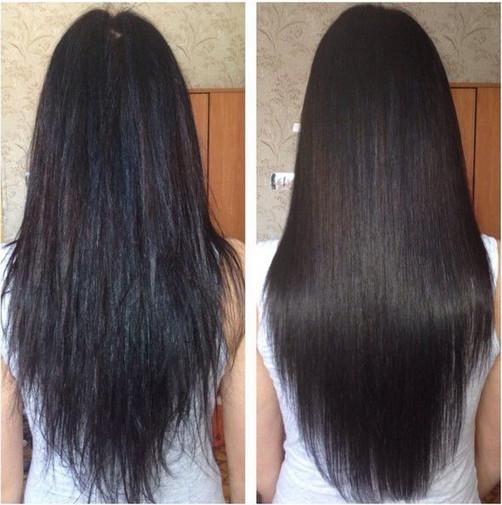 Фото до и после введения ботекса в волосы