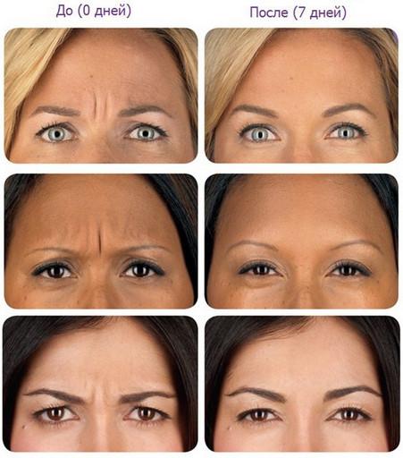 Фото до и после применения ботокса