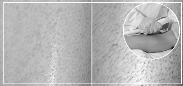 Фото до и после лазерной эпиляции ног