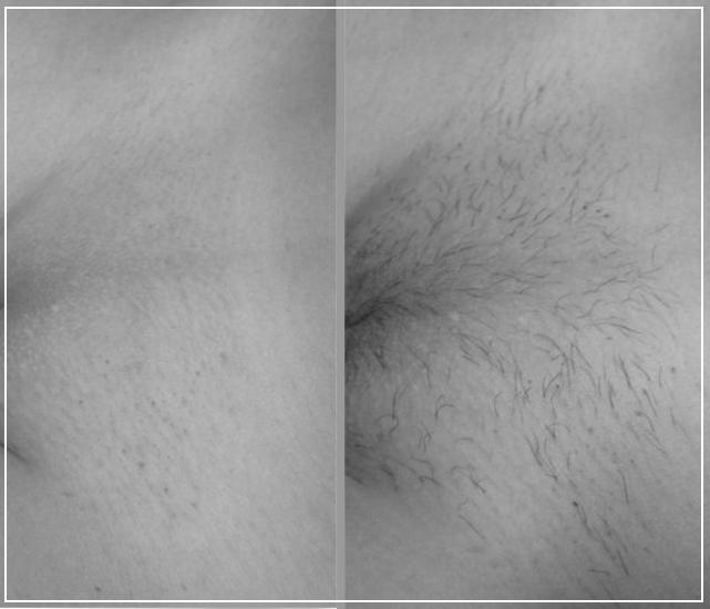 Фото. До и после эпиляции глубокого бикини