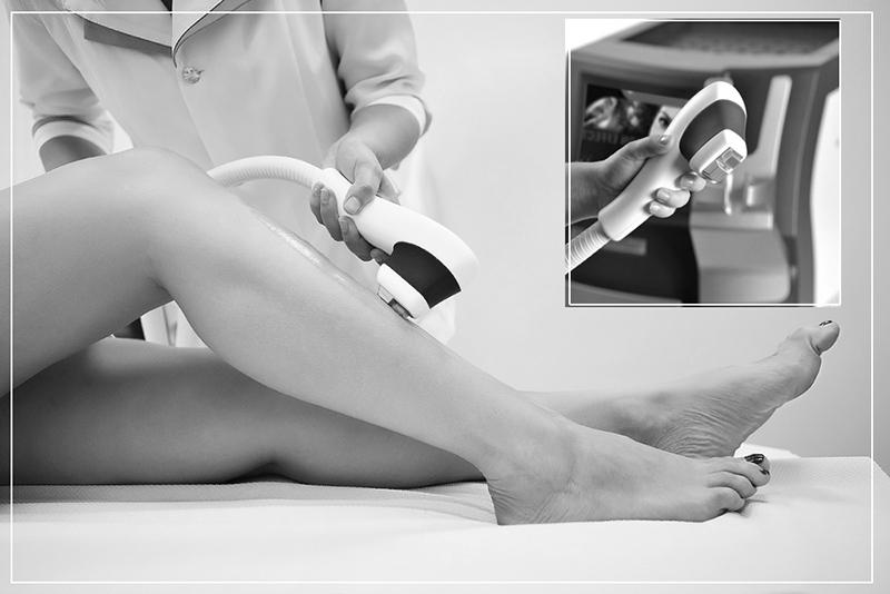 Эпиляция зон на ногах