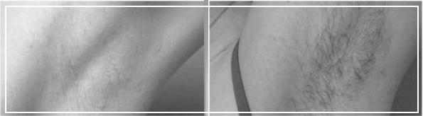 Эпиляция подмышечных впадин. Фото до и после процедуры