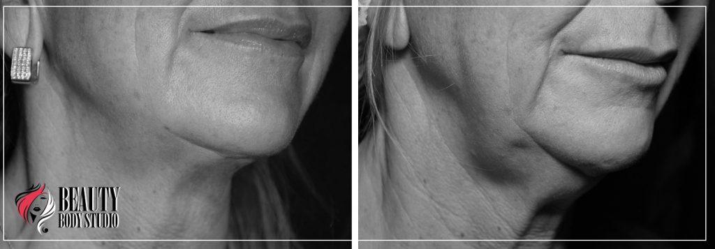 Фото после введения нитей в кожу лица