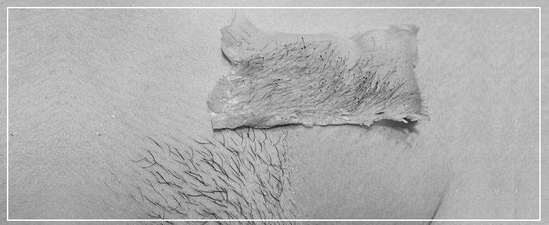 Фото эпиляции бразильского бикини