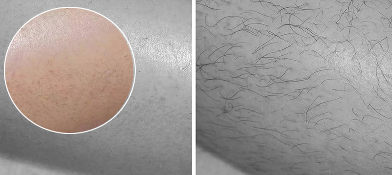 Ваксинг: фото до и после депиляции