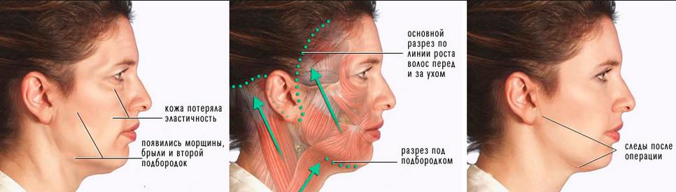 Операция по подтяжке лица