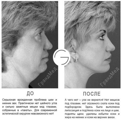 Способы подтяжки шеи: пластическая хирургия