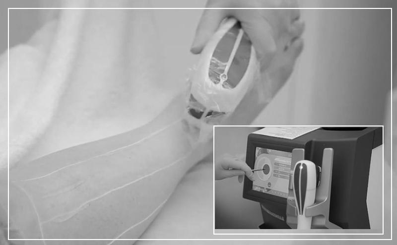 Проведение процедуры лазерной эпиляции перед отпуском