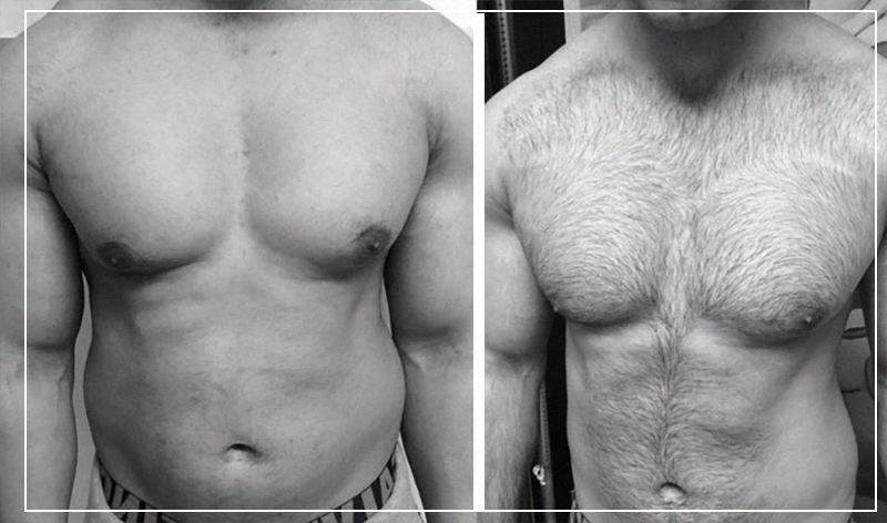 Фото до и после эпиляции: мужчина (грудь)