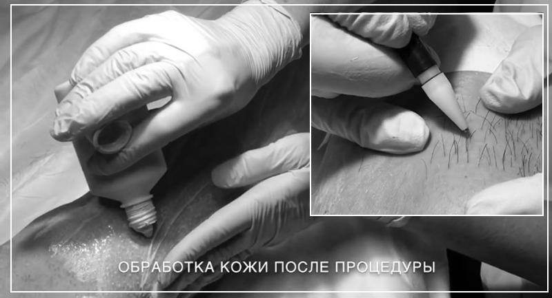 Обработка кожи после электроэпиляции