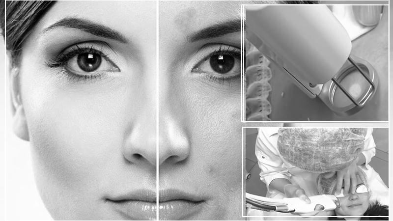 Лазерное лечение пигментации