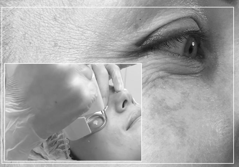 Удаление пигментных пятен на лице и теле при помощи медицинского лазера