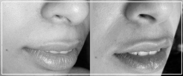 Фото до и после эпиляции лазером верхней губы