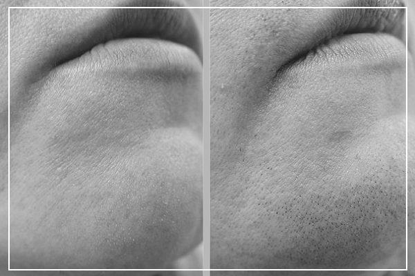 Удаление волос лазером на лице Бакенбарды