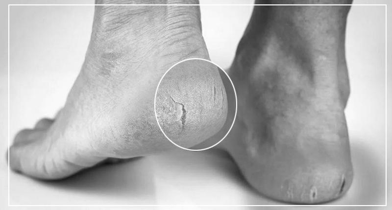 Причины трещин на пятках