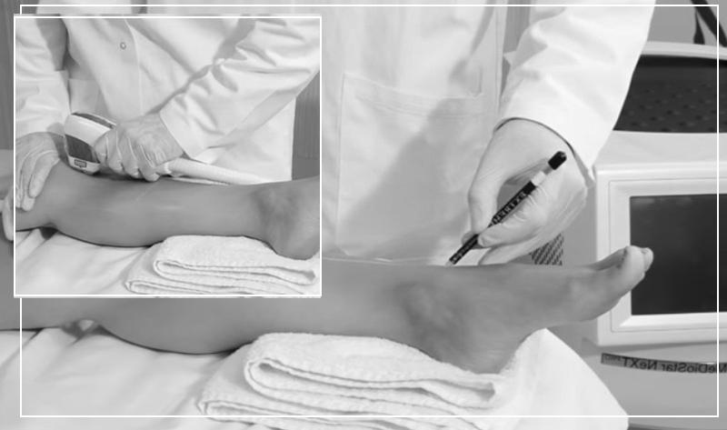 Эпиляция диодным лазером: описание процедуры