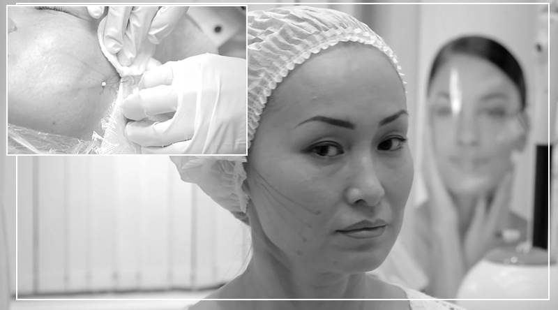 3d (3д) мезонити - сделать подтяжку кожи лица