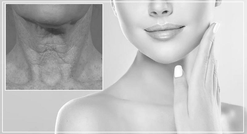Возрастные изменения кожи шеи и декольте