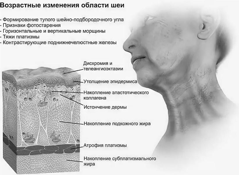 Возрастные изменения шеи