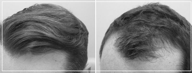 Способы лечения выпадения волос