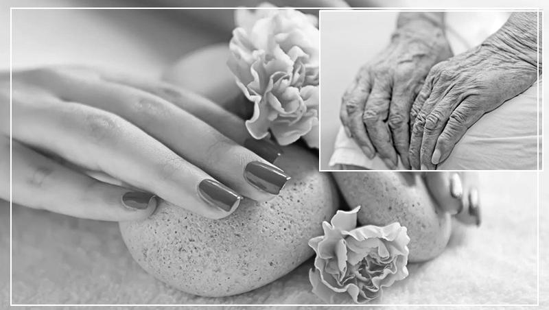 Сухость и старение кожи рук