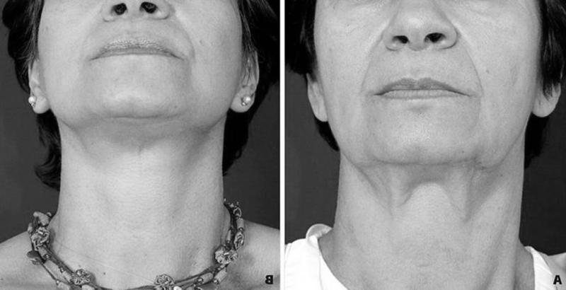Плазмопластика шеи