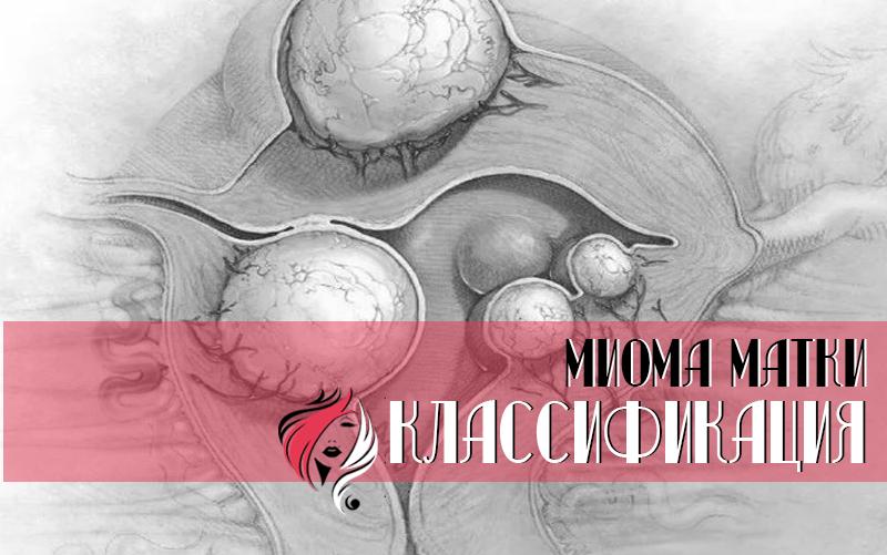 Существует несколько причин, способствующих развитию миомы матки