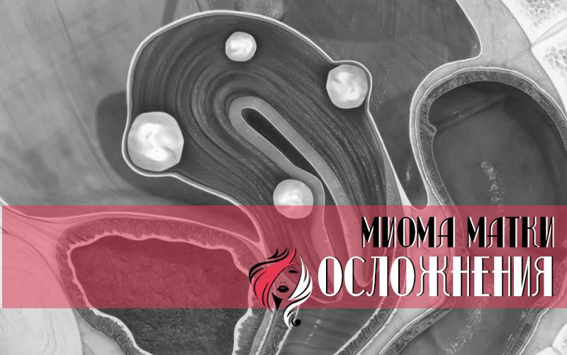Осложнения при миоме матки