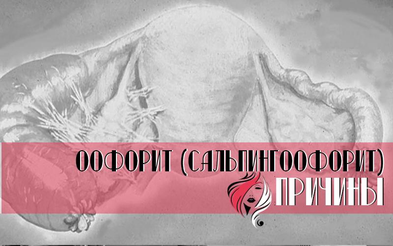 Оофорит (сальпингоофорит, аднексит) – воспаление придатков матки