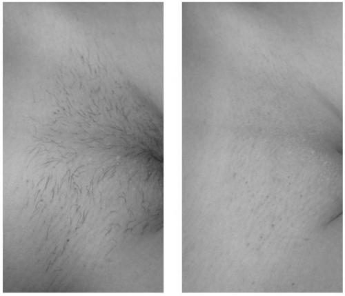 До и после. Эпиляция глубокого бикини