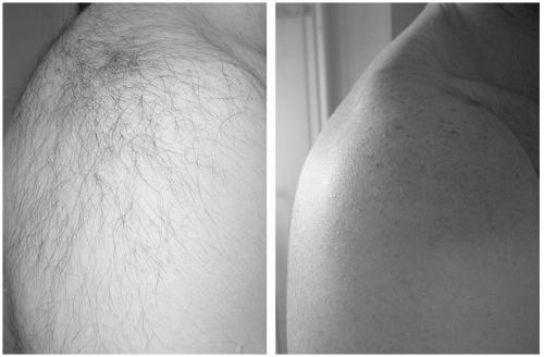 До и после. Эпиляция плеч